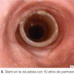 stent en la vía aérea con mas de 10 años