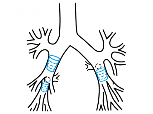 MS03 spigot bronchial